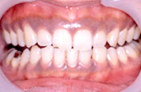 歯ぐきが黒ずんでいる