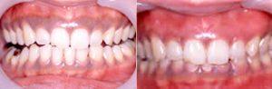 黒ずんだ、見える範囲が広い歯ぐき